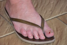 Natural remedies for foot fungus