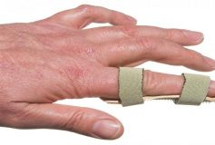 Treating a Dislocated Finger
