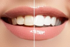 How to Improve Your Teeth with Cosmetic Dentistry