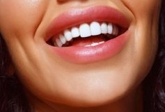 When your teeth should be whitened?