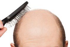 Is Hair Loss Hereditary?